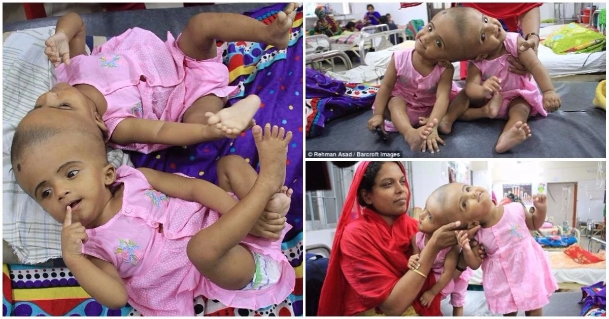 Young conjoined twins set to undergo life-threatening surgery to separate them (photos)