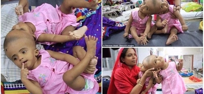 Conjoined twins fused at the head are finally set to undergo separation surgery to save their lives