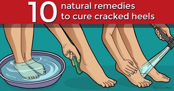 10 natural remedies that can help you cure cracked heels