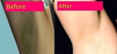 Here's How Lemon Can Help You With Getting Rid Of Dark Under Arms