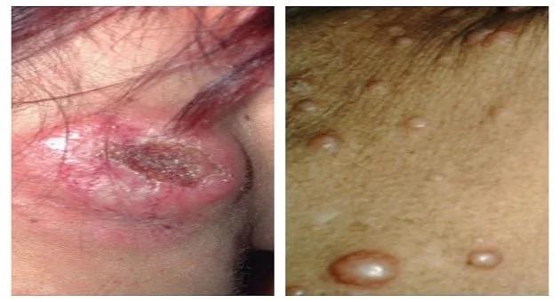 Linfoma, el peligroso cáncer que puede matarte en silencio