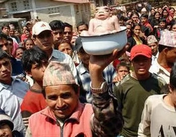 Bebé con apariencia de sapo nació en Nepal