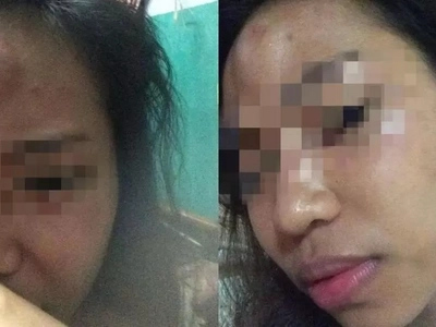 Enraged netizen who experiences abuse from BF encourages women to stand up for their rights