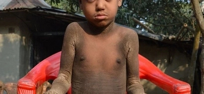 Boy, aged 8, turns into STONE and forced to stay home as kids detest him (photos, video)