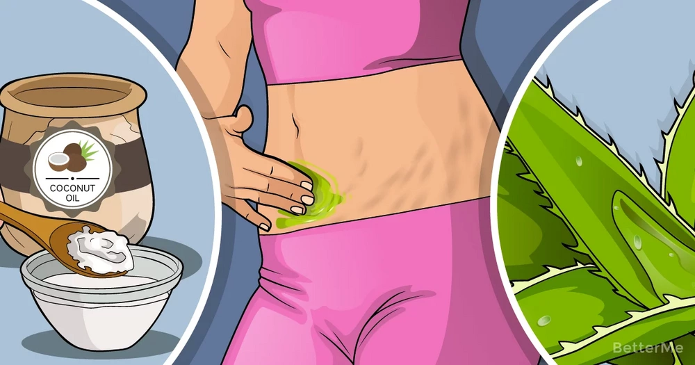 An effective home remedy that can reduce stretch marks, scars and blemishes