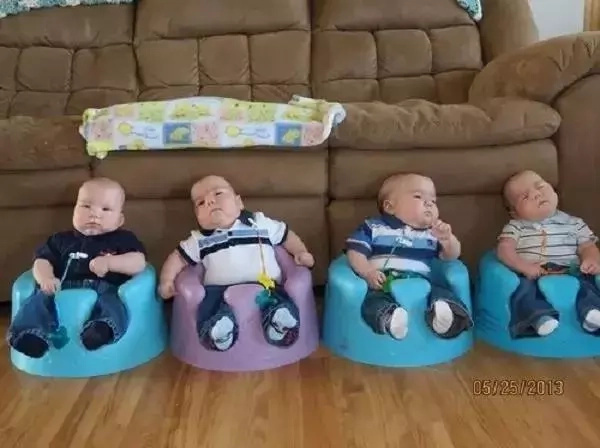 Woman gives birth to 4 babies at once, but they're unusual quadruplets