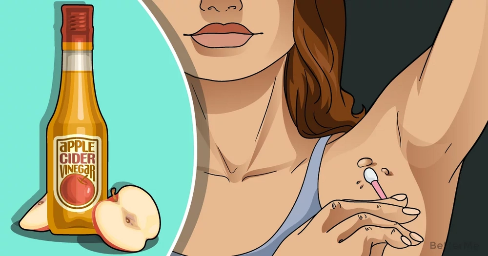 7 easy ways that can help you remove skin tags