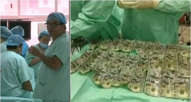 Woman feels terrible pain in her stomach, shocked doctors extract N2.2m (photos)