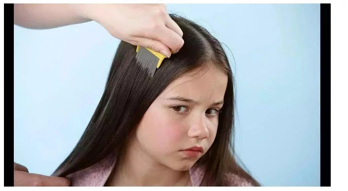 Girl In Critical Condition Because Of Her Parents – You Will Not Believe What They Used To Remove Lice From Their Child's Hair