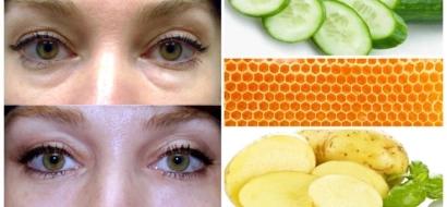 Aplica esta mezcla casera en tus ojeras y en 3 minutos las verás desaparecer