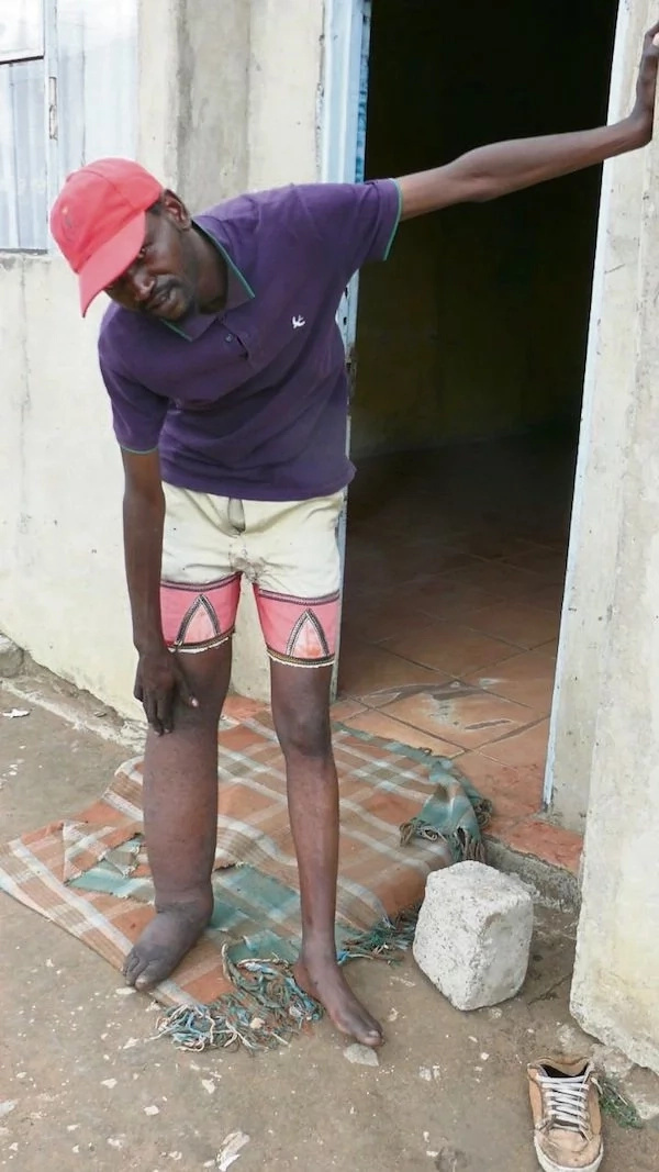 Mcebo has lived with elephantiasis for 21 years. Photo: Daily Sun