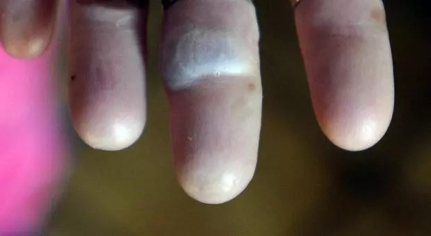 Sandra has lost her fingerprints as a result of the rare skin condition