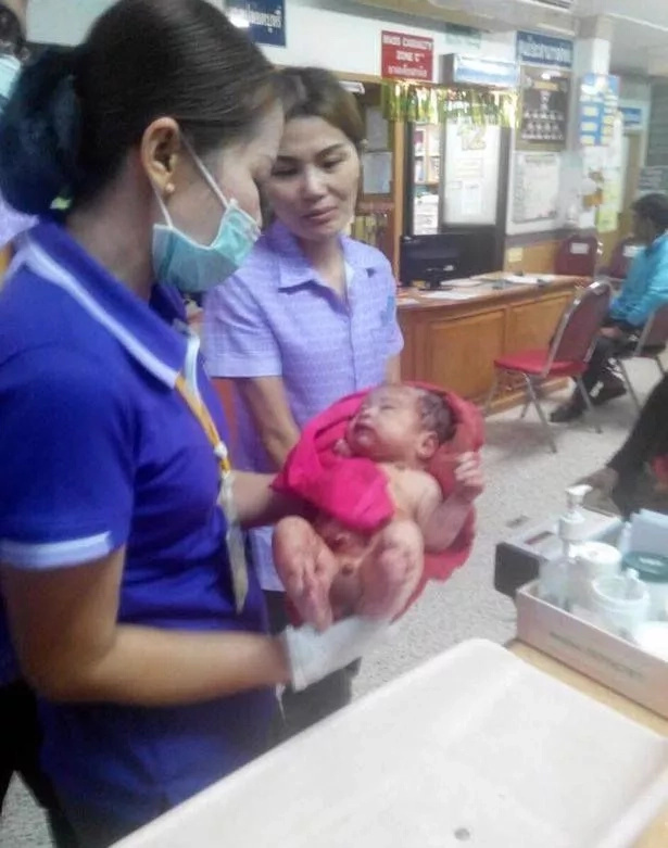 Baby survives miraculously despite being buried alive and stabbed 14 times by mother