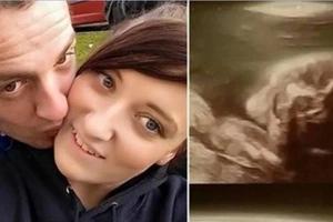 Mujer embarazada que murió inesperadamente será enterrada con su bebé en brazos