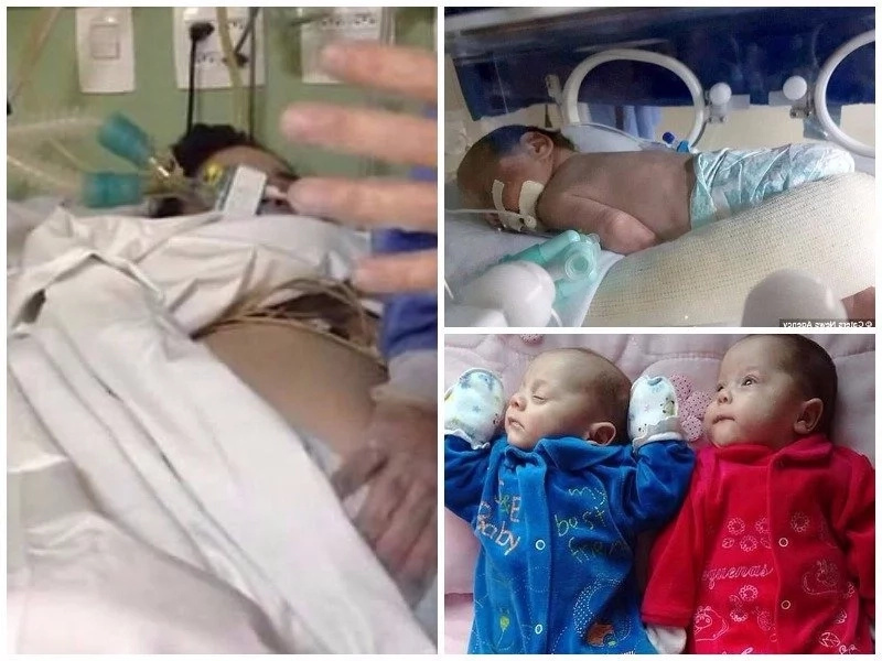 Wawu! Woman who was confirmed dead lives to give birth to twins 123 days after (photos)