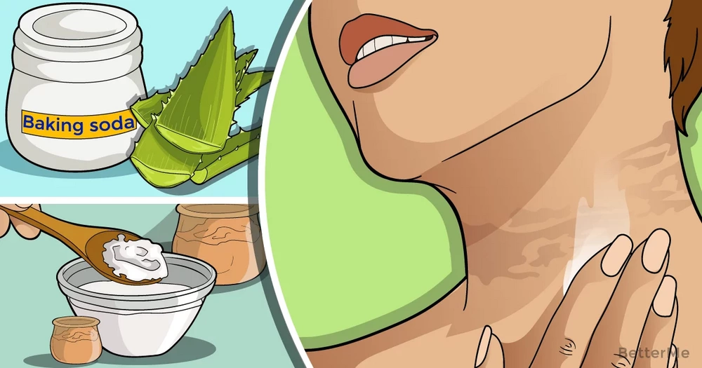 10 home remedies that can reduce the dark skin on your neck