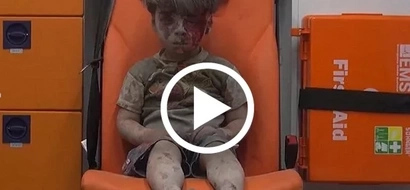VIDEO: This child's bloodstained face depicts the HORRORS of WAR in Syria