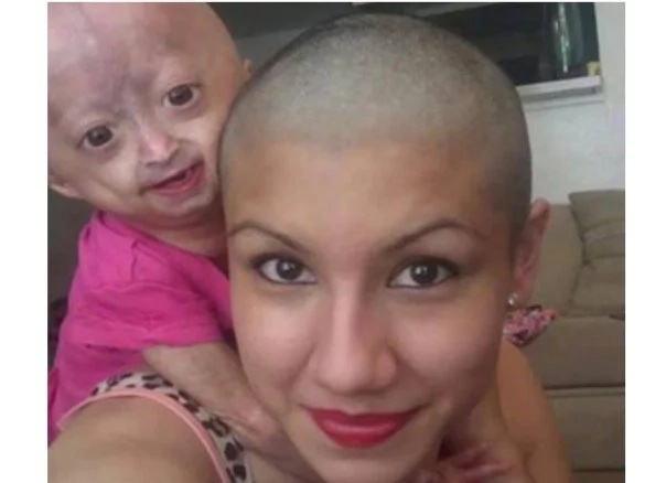 Mommy shaves her head to show support for her daughter with Progeria (photos)