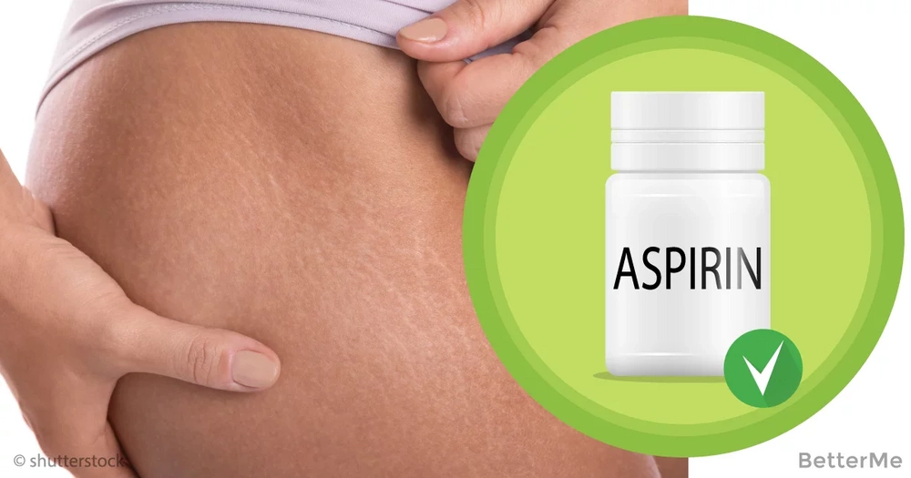 How to reduce stretch marks by using aspirin