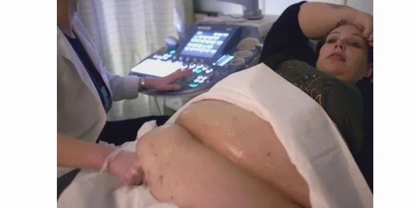 Shocking! Obese Mum Conceives Again After Having Her Fallopian Tubes Tied