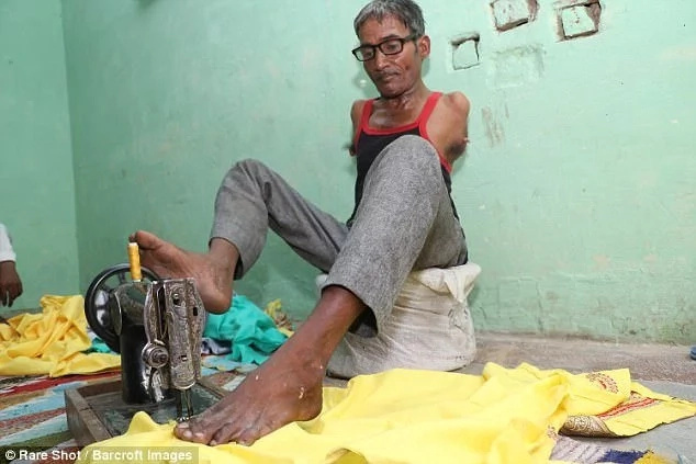Inspirational: Madan Lal has defied the odds. Photo: Barcroft Images