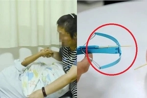 Boy's eye shot with toothpick by his classmate. Eyesight permanently damaged
