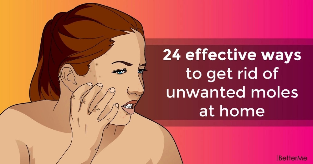24 effective ways to get rid of unwanted moles at home