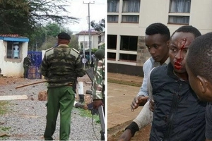 University student shot by police in demos gets shocking news of his life