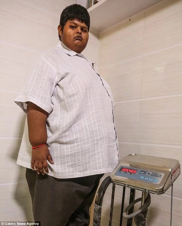 See boy, 15, who used to eat enough daily to feed 10 people and weighed 150kg (photos)