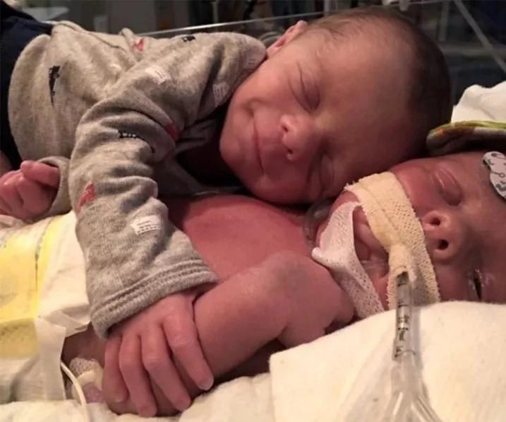 """Bebé diciendo """"Adiós"""" a su gemelo agonizante romperá tu corazón"""