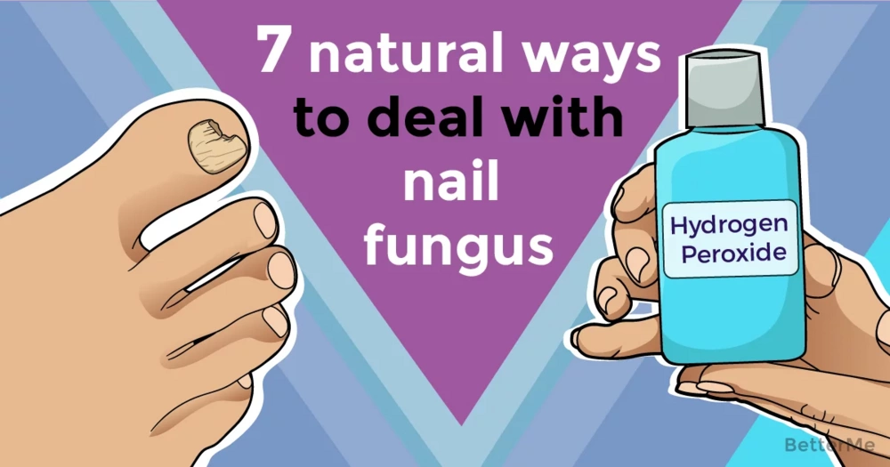 7 natural ways to deal with nail fungus
