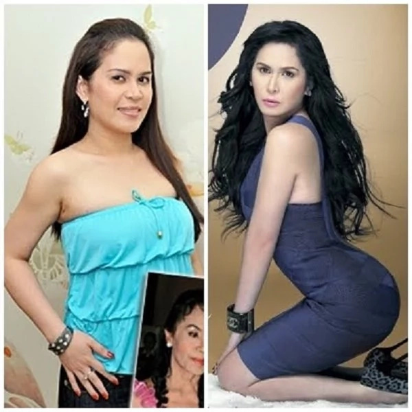 Pinay celebrities who are proud to have undergone cosmetic surgeries