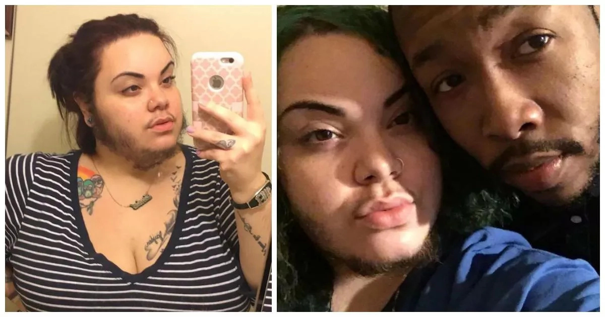 Woman who has beard since age of 16 embraces her facial hair and her boyfriend LOVES it (photos)