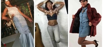Woman hid herself for 15 YEARS because people called her 'dog'; now she is the new hottest model