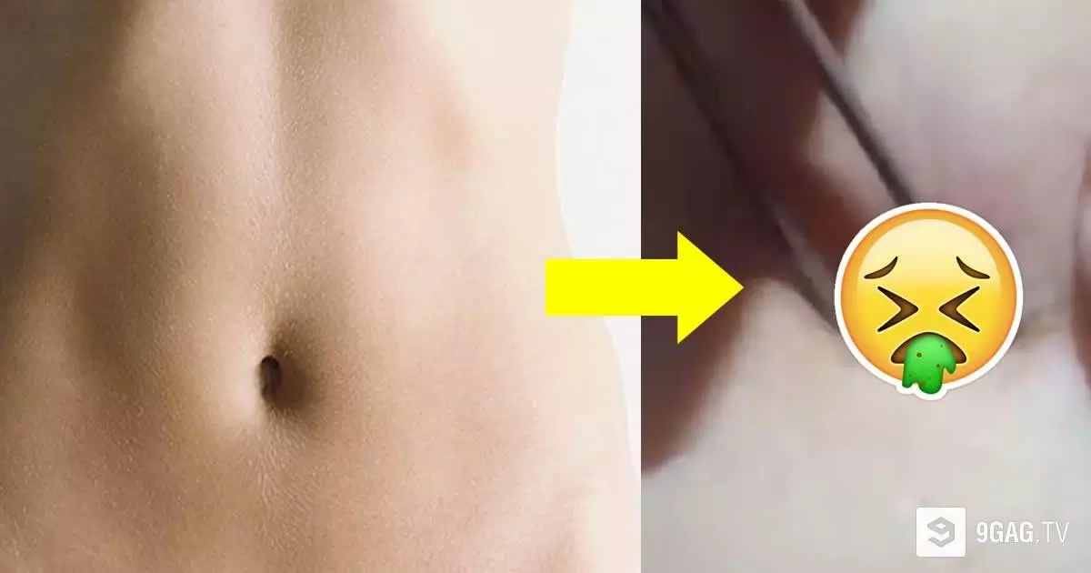 Woman Pulls Out The Grossest Giant Blackhead From Her Belly Button... EW!