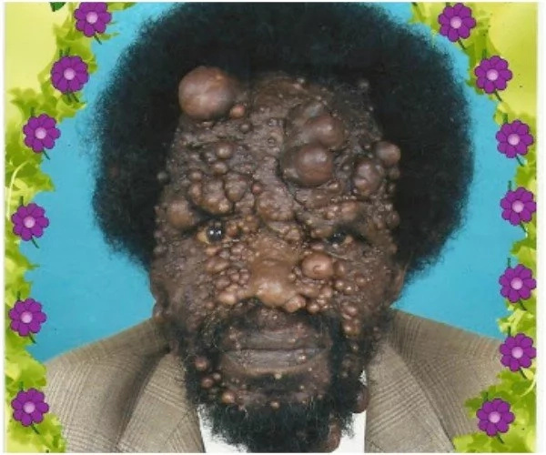 Pastor with mysterious skin disease winning people of God (photos)