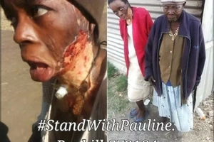 Husband sets wife on fire and the results brings Kenyans to tears