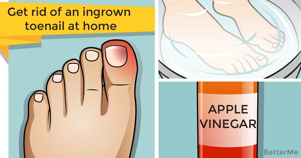 You can get rid of an ingrown toenail at home