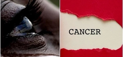 While you are busy chasing money all your life, cancer is looking for you - retired teacher now reveals in teary testimony