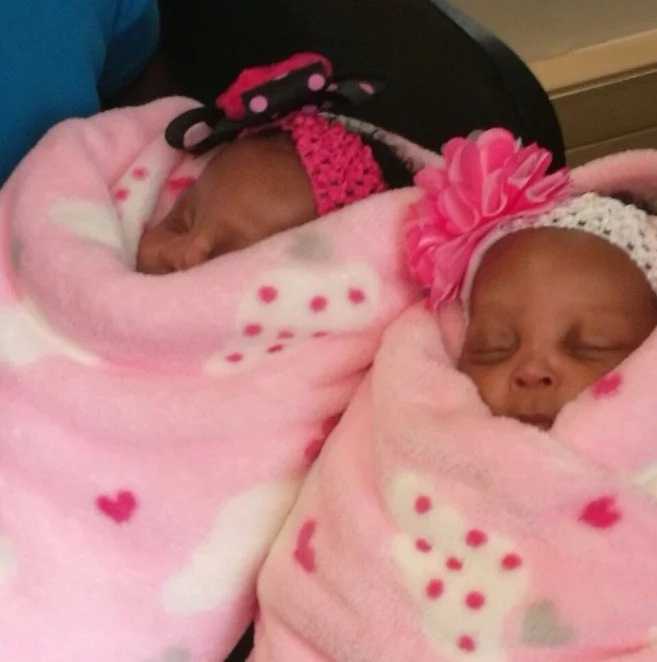 Conjoined twin girls were successfully SEPARATED and ready to go home, see results! (see photos)