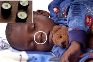 Mom applies this remedy to her baby, shortly after he dies. Be careful with this, moms!