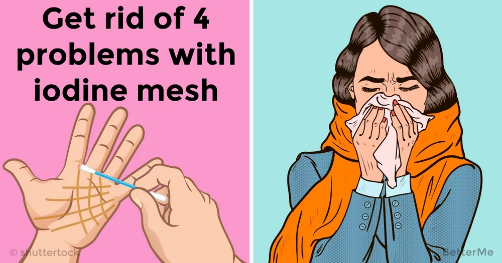 Iodine mesh can help you solve 4 problems