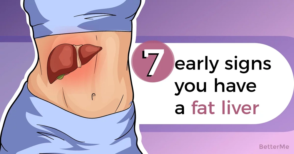 7 signs that you have a fat liver