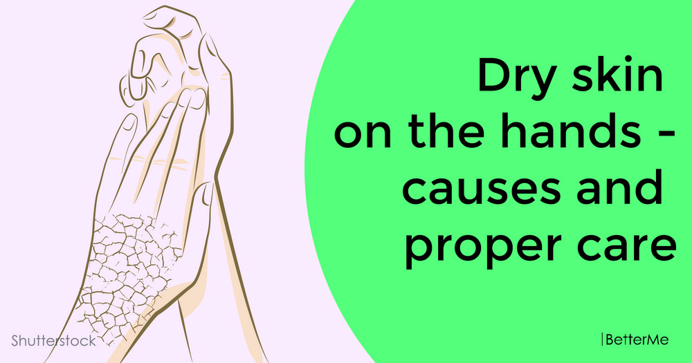 Dry skin on the hands - causes and proper care