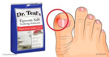 6 surprisingly effective ways to get rid of ingrown toenails