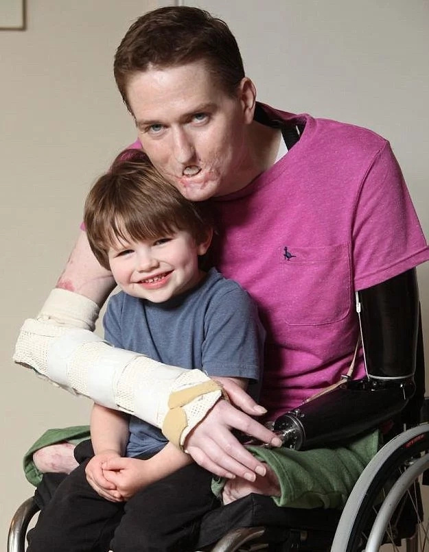 A father lost four limbs, half his face; watch how his son reacts