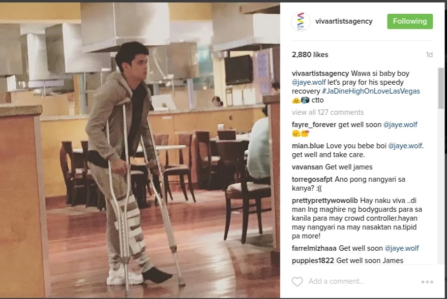 James Reid injured by fan