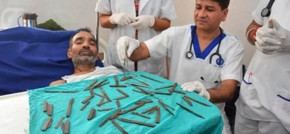Man who swallowed 40 KNIVES rushed to hospital in agony (photos, video)