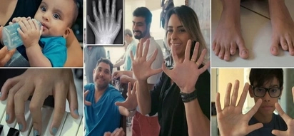 Incredible! Family of 14 who all have 6 fingers and 6 toes welcome newborn with same anomaly