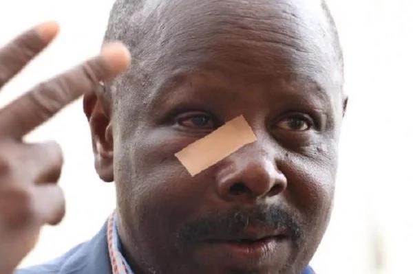 Ruto bado yuko katika hali mbaya nchini Afrika Kusini?